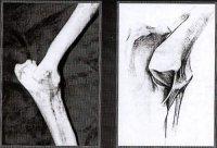 Рис. 4. Медиальная коллатеральная связка локтевого сустава.  Скрупулезное изучение макропрепаратов локтевого сустава...